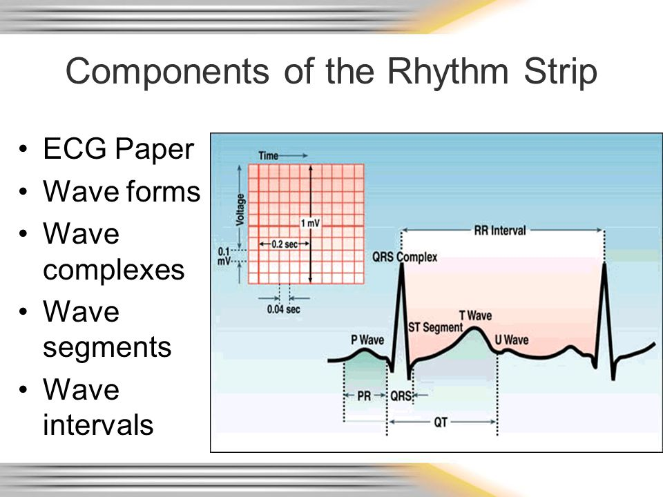 Components of the Rhythm Strip