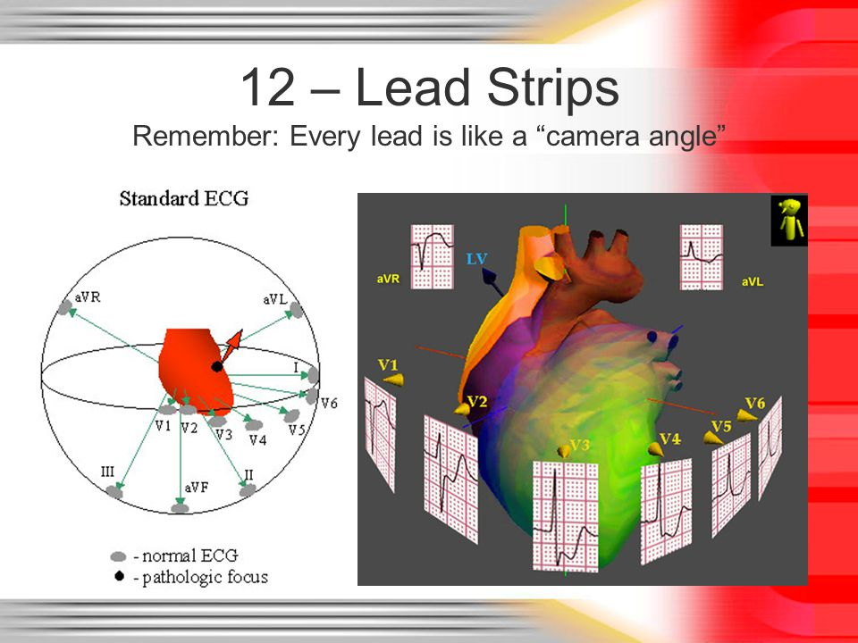 12 – Lead Strips Remember: Every lead is like a camera angle