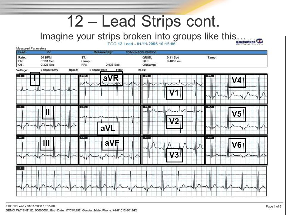 12 – Lead Strips cont. Imagine your strips broken into groups like this…