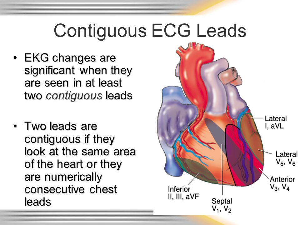 Contiguous ECG Leads EKG changes are significant when they are seen in at least two contiguous leads.