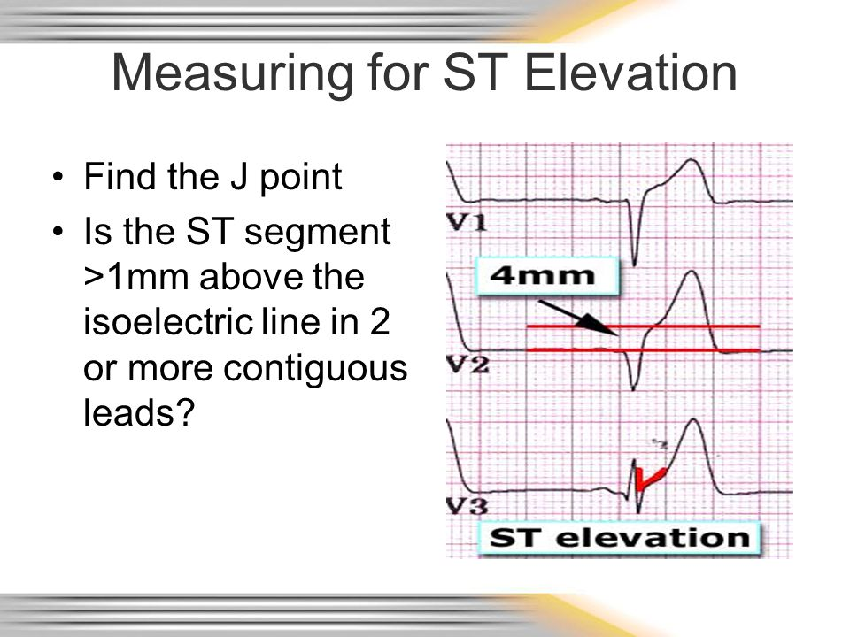 Measuring for ST Elevation