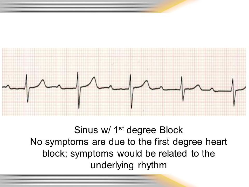 Sinus w/ 1st degree Block