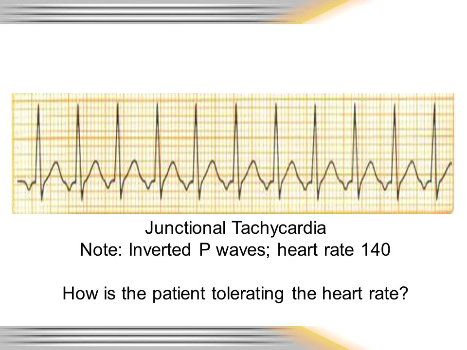 Junctional Tachycardia Note: Inverted P waves; heart rate 140
