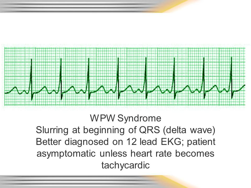 WPW Syndrome Slurring at beginning of QRS (delta wave) Better diagnosed on 12 lead EKG; patient asymptomatic unless heart rate becomes tachycardic