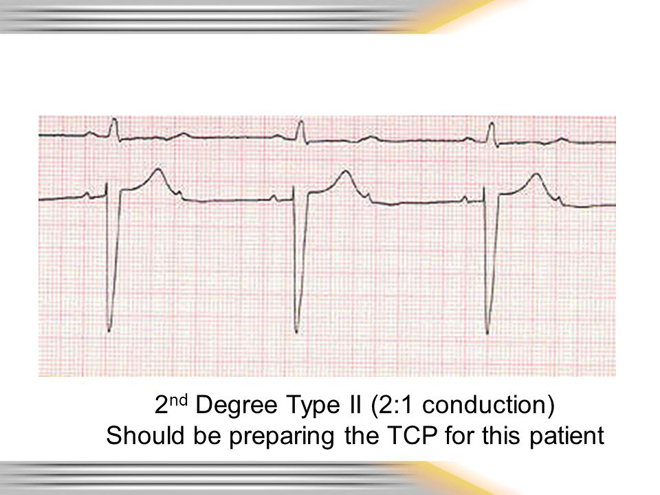 2nd Degree Type II (2:1 conduction)