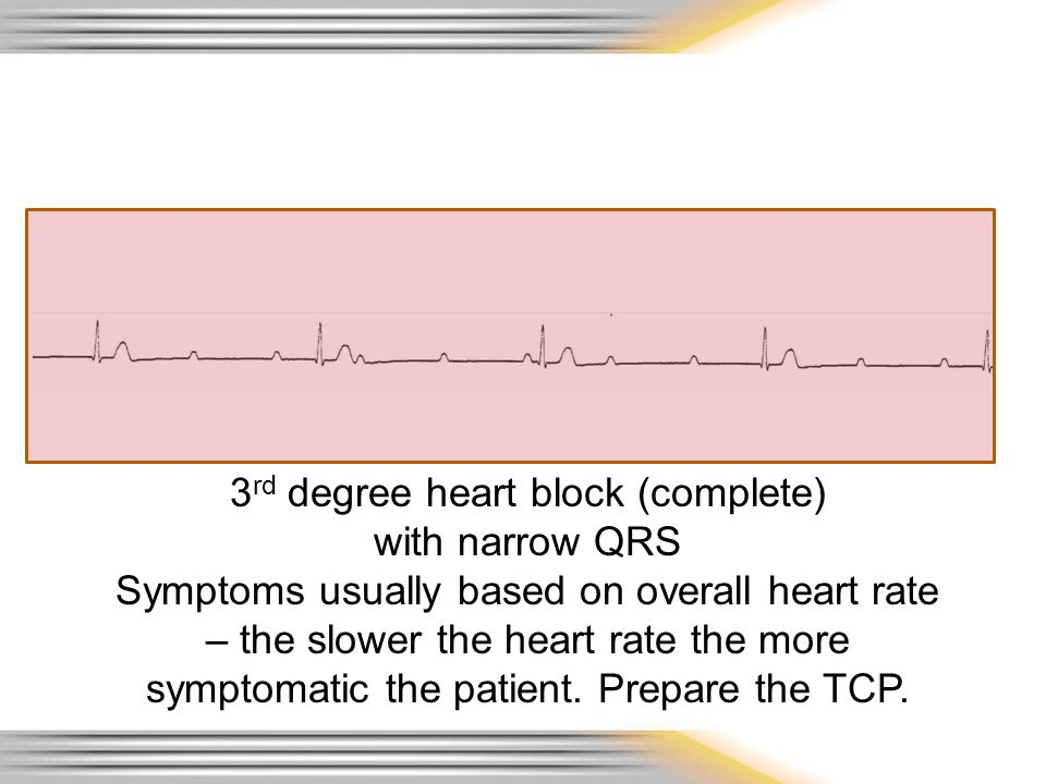 3rd degree heart block (complete)