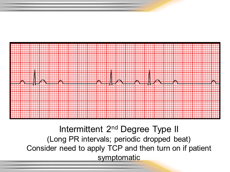 Intermittent 2nd Degree Type II