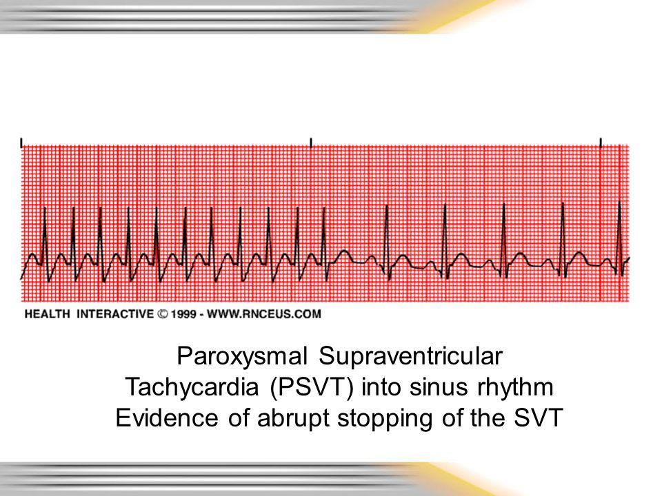 Paroxysmal Supraventricular Tachycardia (PSVT) into sinus rhythm