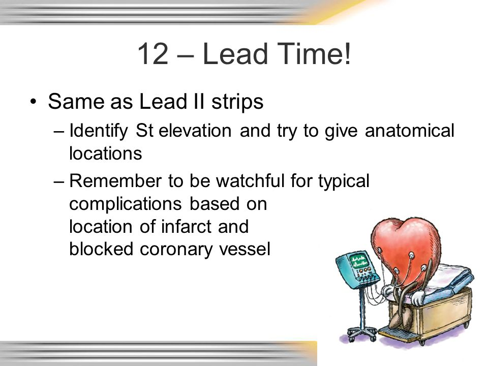 12 – Lead Time! Same as Lead II strips
