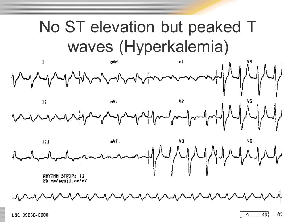 No ST elevation but peaked T waves (Hyperkalemia)