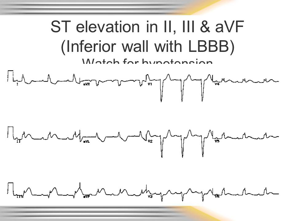 ST elevation in II, III & aVF (Inferior wall with LBBB) Watch for hypotension