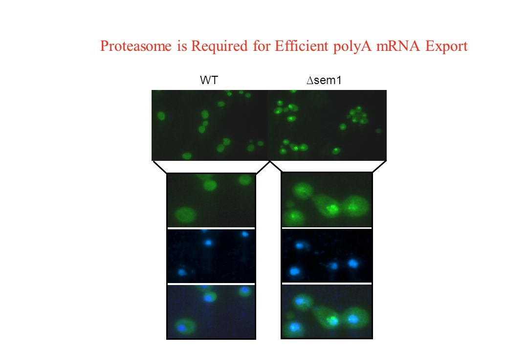 Proteasome is Required for Efficient polyA mRNA Export