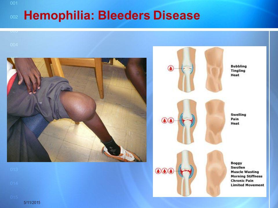 Hemophilia: Bleeders Disease