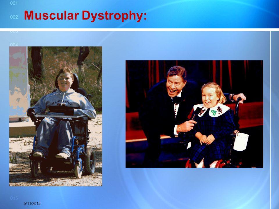 Muscular Dystrophy: 4/15/2017