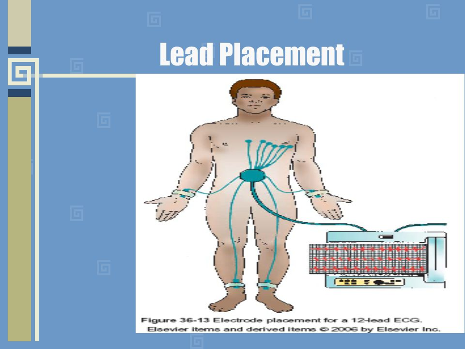 Lead Placement