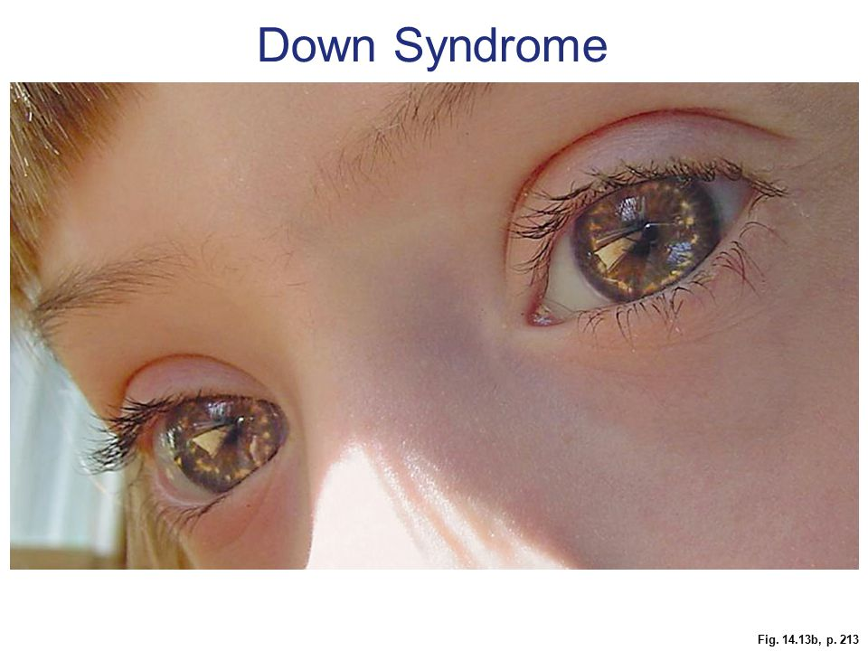 Down Syndrome Figure 14.13 Down syndrome, genotype and phenotype.