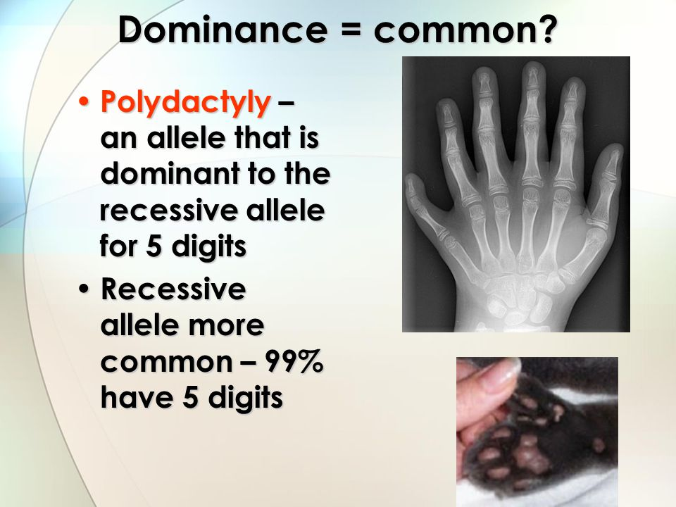 Dominance = common. Polydactyly – an allele that is dominant to the recessive allele for 5 digits.