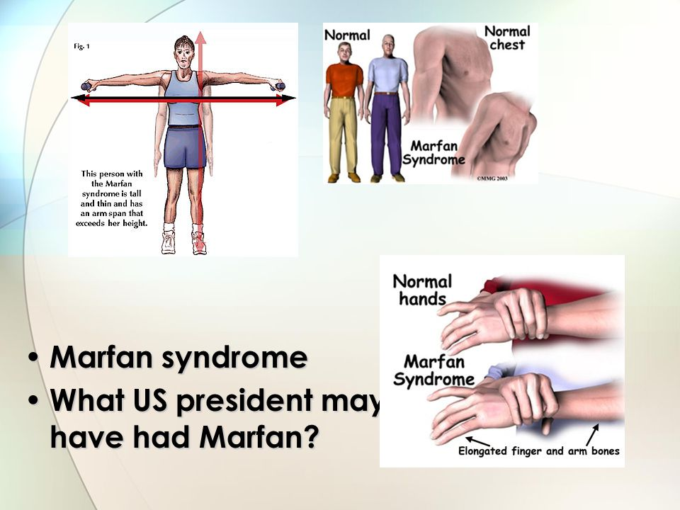 Marfan syndrome What US president may have had Marfan