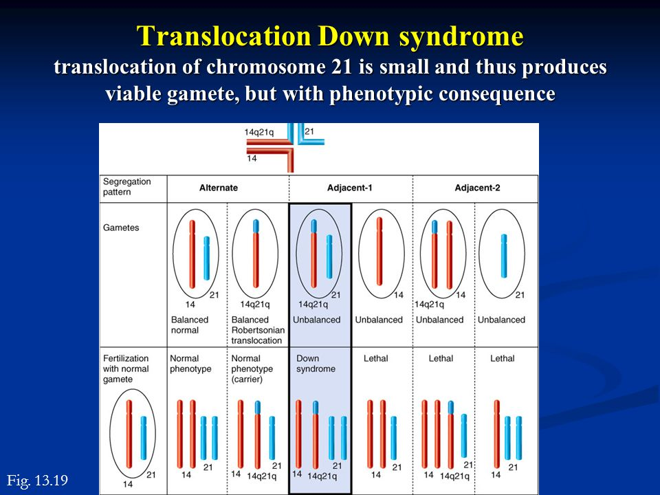 Translocation Down syndrome translocation of chromosome 21 is small and thus produces viable gamete, but with phenotypic consequence