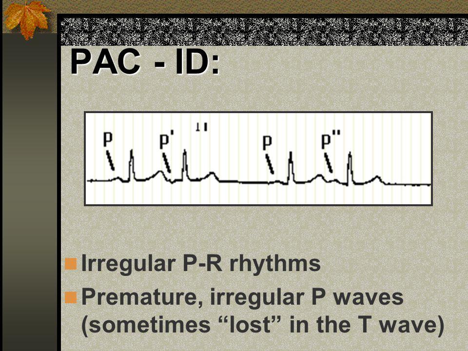 PAC - ID: Irregular P-R rhythms