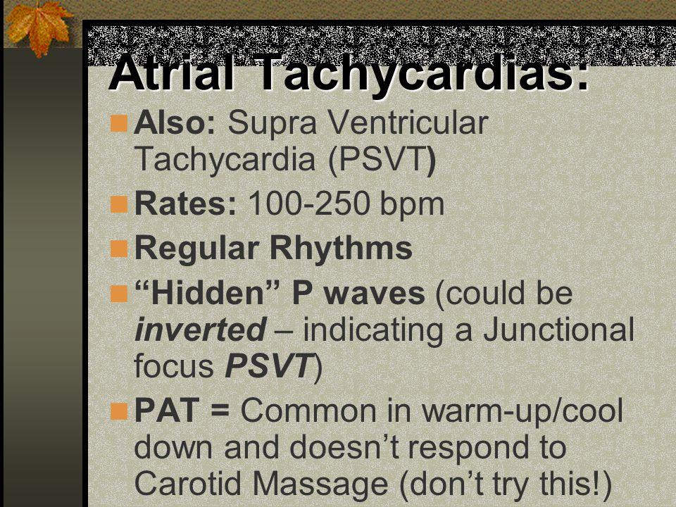 Atrial Tachycardias: Also: Supra Ventricular Tachycardia (PSVT)