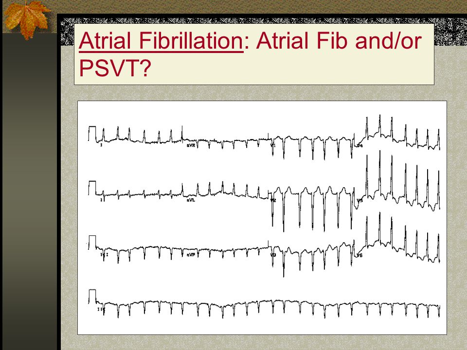 Atrial Fibrillation: Atrial Fib and/or