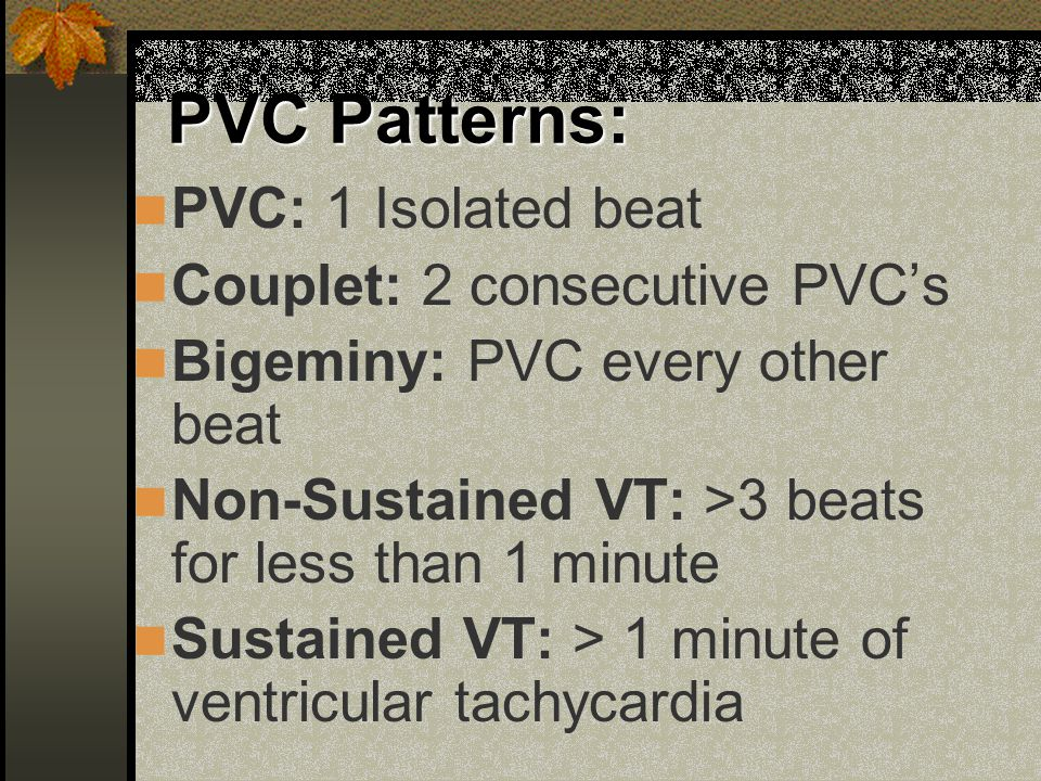 PVC Patterns: PVC: 1 Isolated beat Couplet: 2 consecutive PVC's