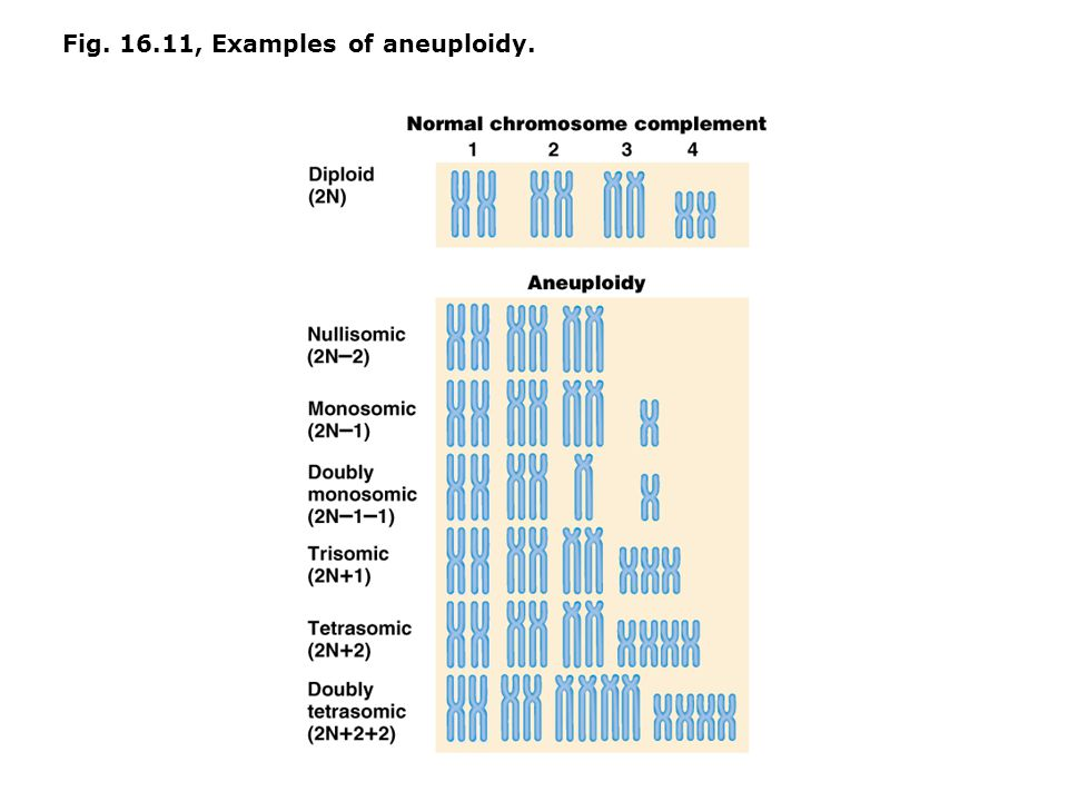 Fig. 16.11, Examples of aneuploidy.