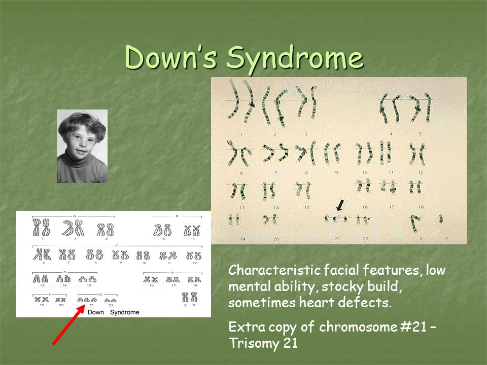 Down's Syndrome Characteristic facial features, low mental ability, stocky build, sometimes heart defects.