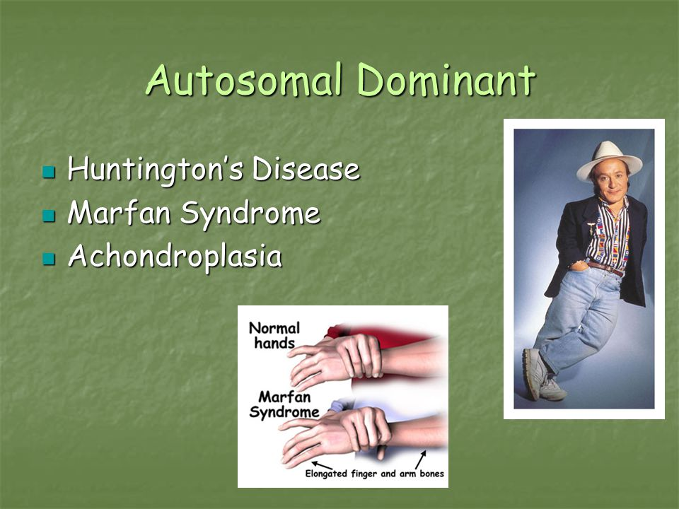 Autosomal Dominant Huntington's Disease Marfan Syndrome Achondroplasia