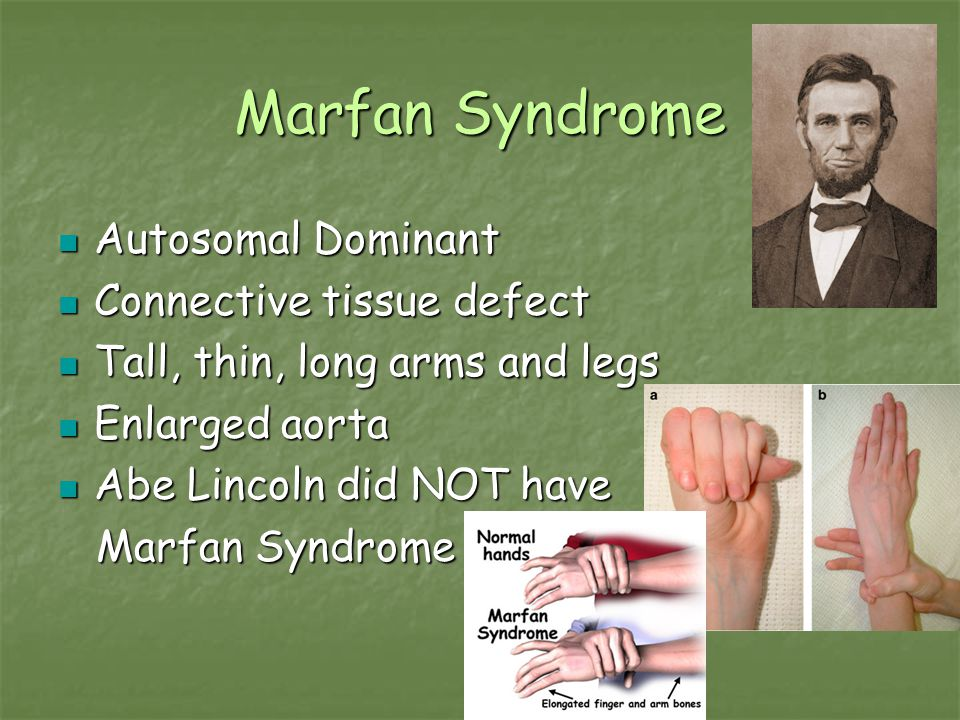 Marfan Syndrome Autosomal Dominant Connective tissue defect