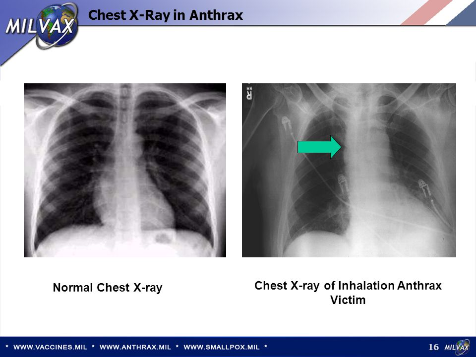 Chest X-ray of Inhalation Anthrax