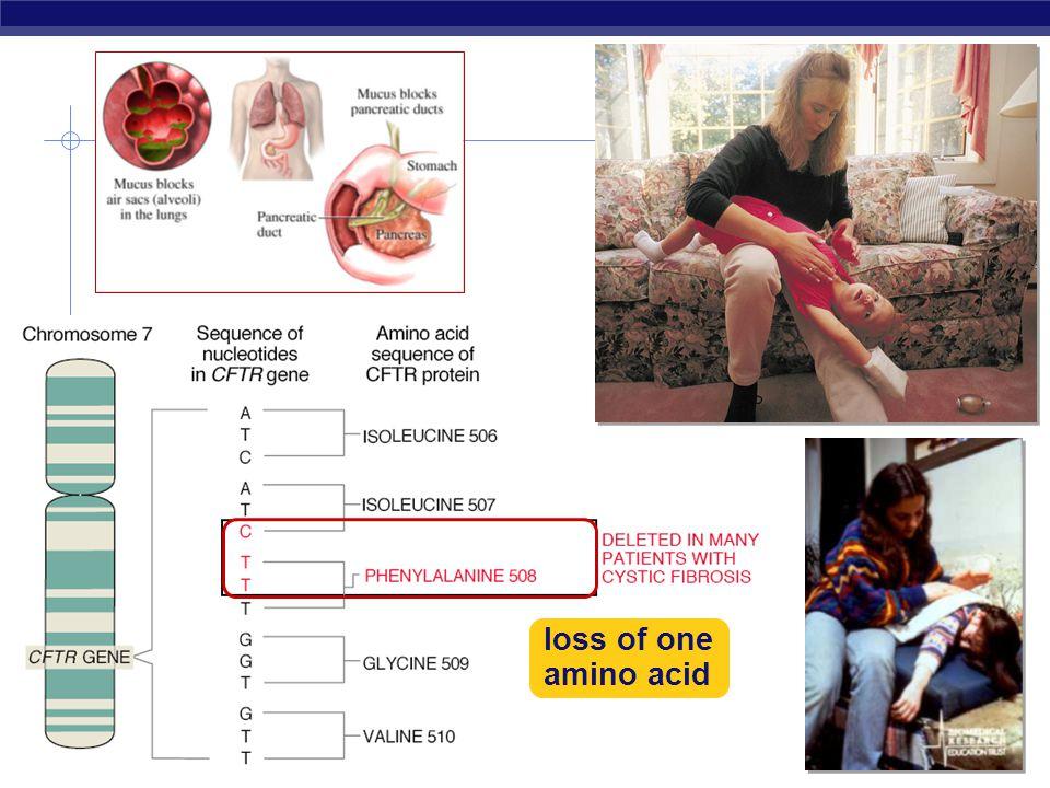 loss of one amino acid