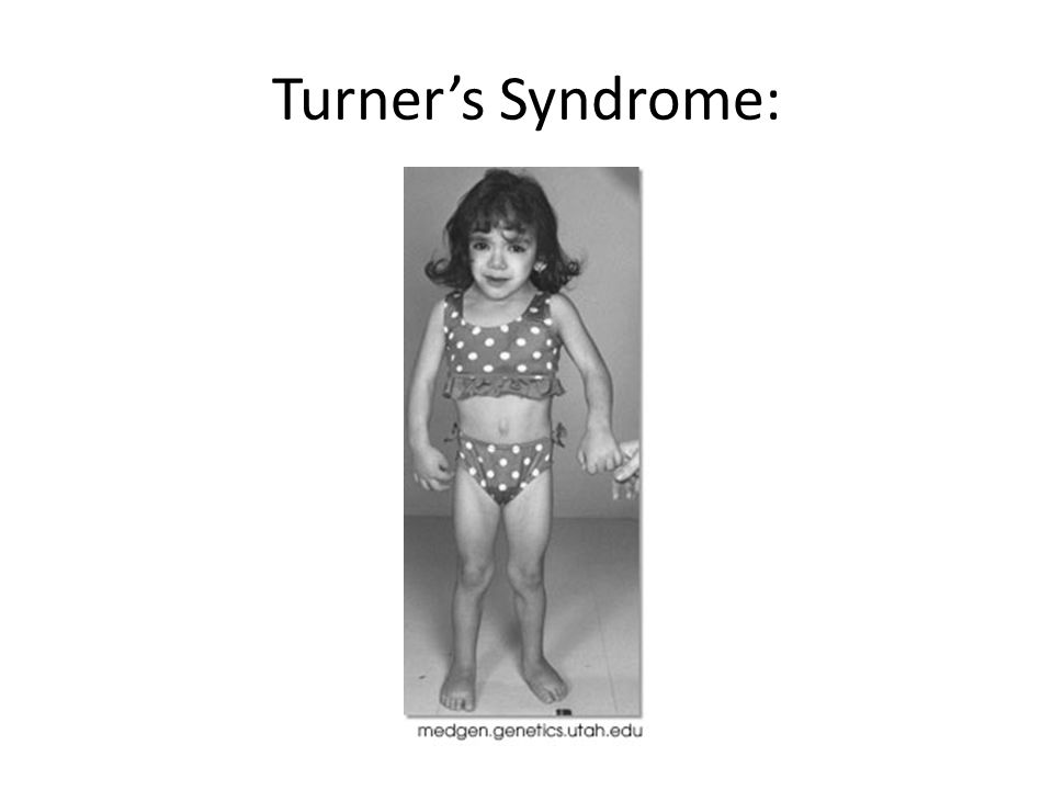Turner's Syndrome: