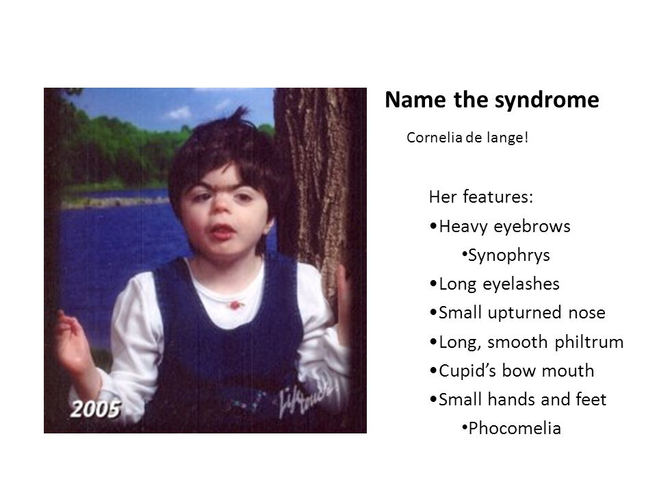 Name the syndrome Her features: Heavy eyebrows Synophrys