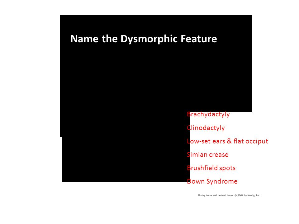 Images Name the Dysmorphic Feature Brachydactyly Clinodactyly