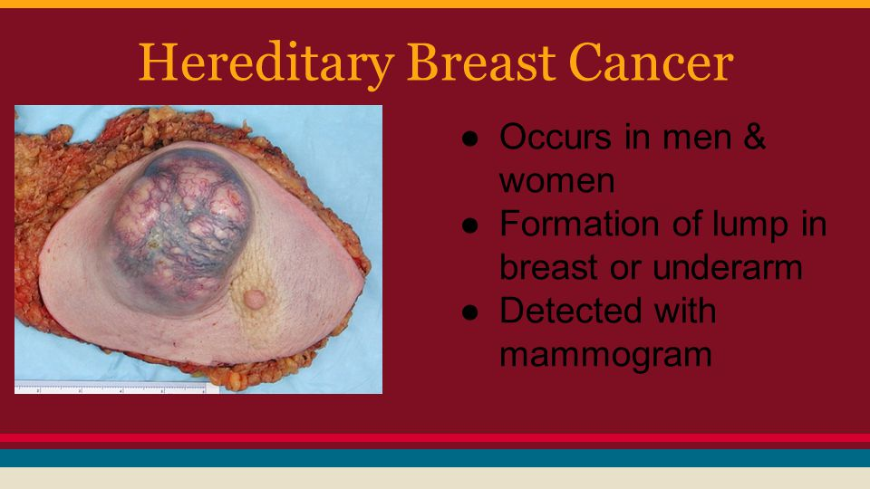 the cause of hereditary breast cancer on females Read about inherited gene mutations that increase breast likely causes breast cancer support for women affected by hereditary breast and/or.