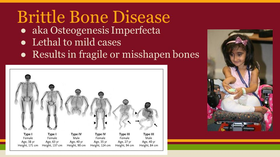 Brittle Bone Disease aka Osteogenesis Imperfecta Lethal to mild cases