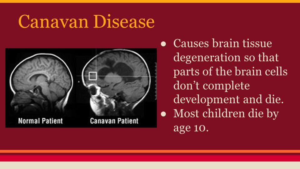 Canavan Disease Causes brain tissue degeneration so that parts of the brain cells don't complete development and die.