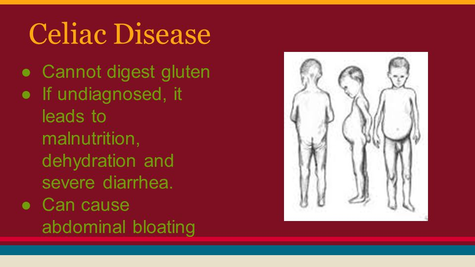 Celiac Disease Cannot digest gluten