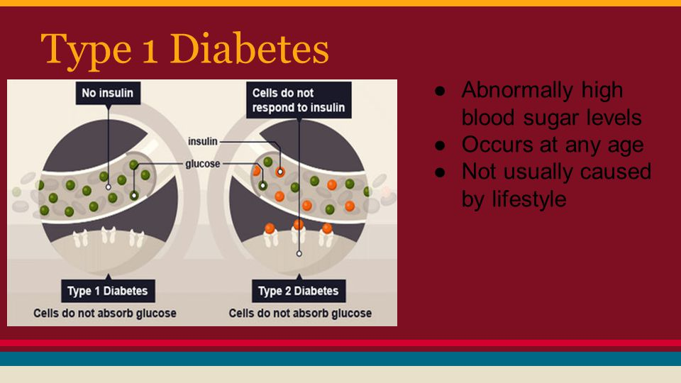 Type 1 Diabetes Abnormally high blood sugar levels Occurs at any age