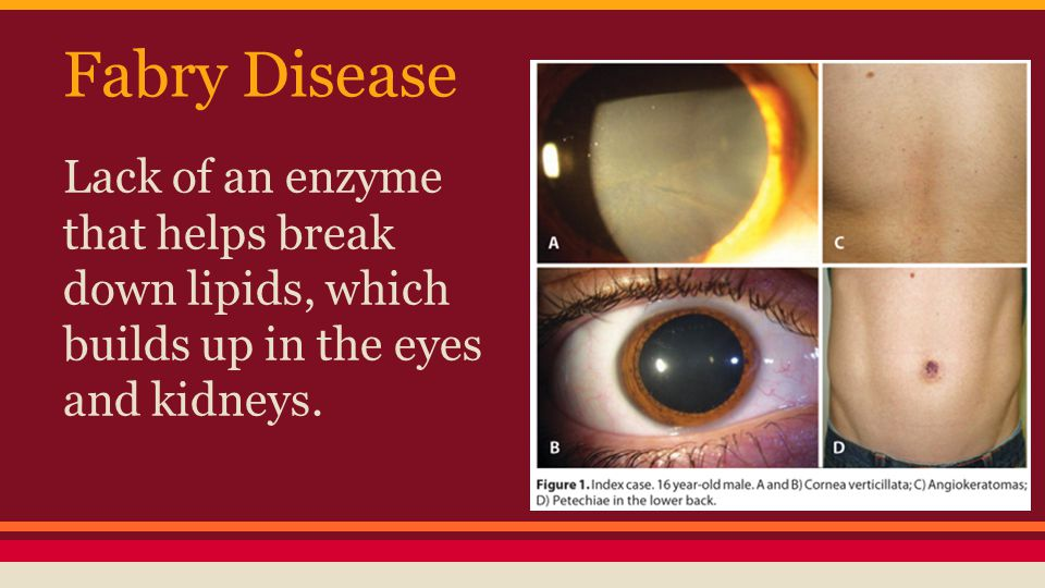 Fabry Disease Lack of an enzyme that helps break down lipids, which builds up in the eyes and kidneys.