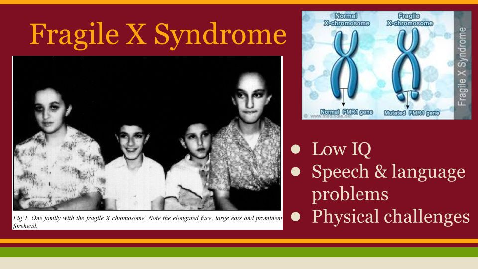 Fragile X Syndrome Low IQ Speech & language problems