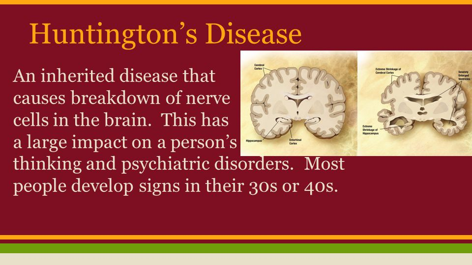 Huntington's Disease An inherited disease that