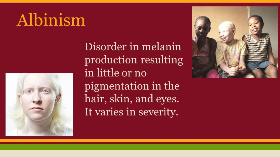 Albinism Disorder in melanin production resulting in little or no pigmentation in the hair, skin, and eyes.