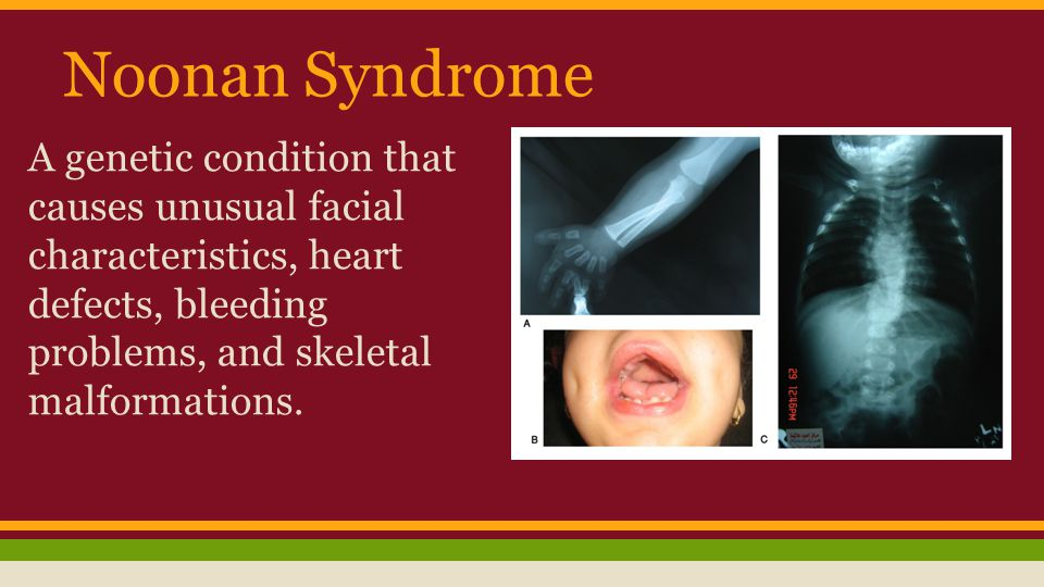 Noonan Syndrome A genetic condition that causes unusual facial characteristics, heart defects, bleeding problems, and skeletal malformations.