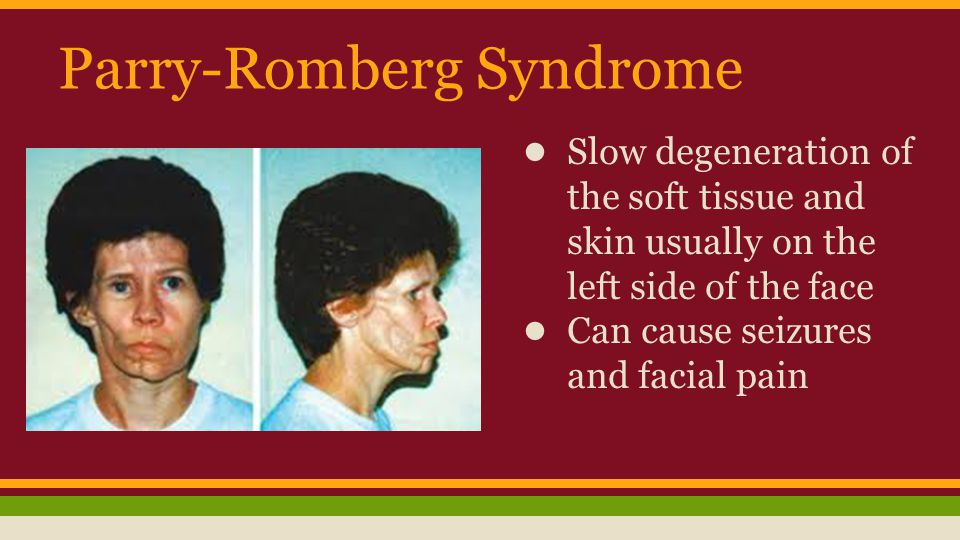 Parry-Romberg Syndrome