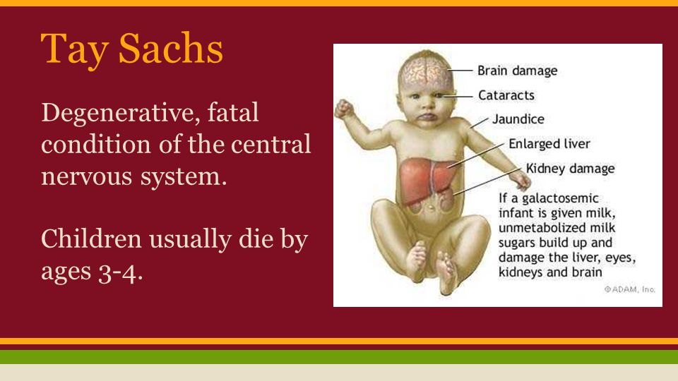 Tay Sachs Degenerative, fatal condition of the central nervous system.