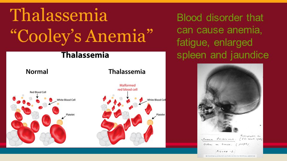 Thalassemia Cooley's Anemia