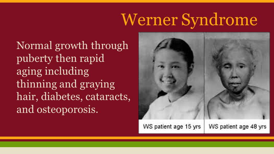 Werner Syndrome Normal growth through puberty then rapid aging including thinning and graying hair, diabetes, cataracts, and osteoporosis.